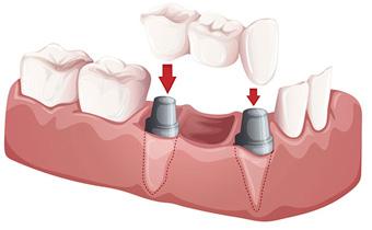 dental bridge Smyrna, TN